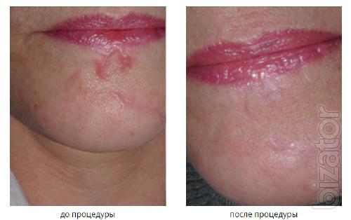 эффективное удаление шрамов и рубцов