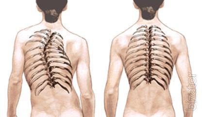 Исцеление от сколиоза, лордоза, кифоза, межпозвоночных грыж без упражнений, операций, лекарств